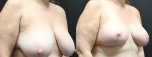 Breast Before and After Photo - Patient 4C