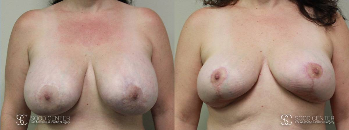 Breast Before and After Photo - Patient 5A