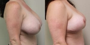Breast Before and After Photo - Patient 5B