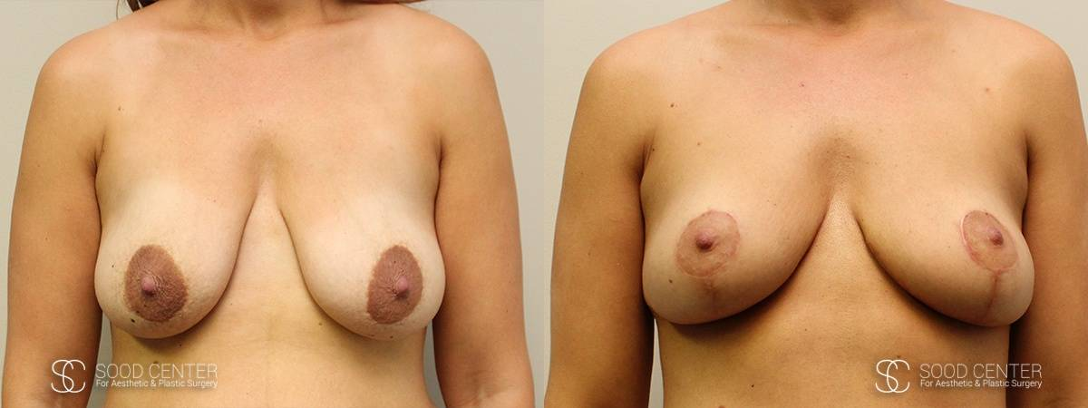 Breast Before and After Photo - Patient 6A