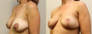 Breast Before and After Photo - Patient 6B