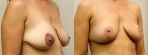 Breast Before and After Photo - Patient 6C