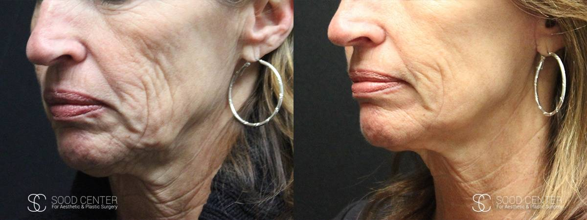 Mini Facelift Before and After Photo - Patient 1