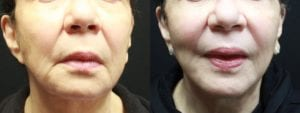 Mini Facelift Before and After Photo - Patient 2A