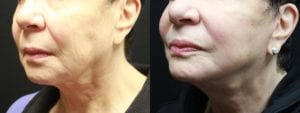 Mini Facelift Before and After Photo - Patient 2B