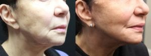 Mini Facelift Before and After Photo - Patient 2C