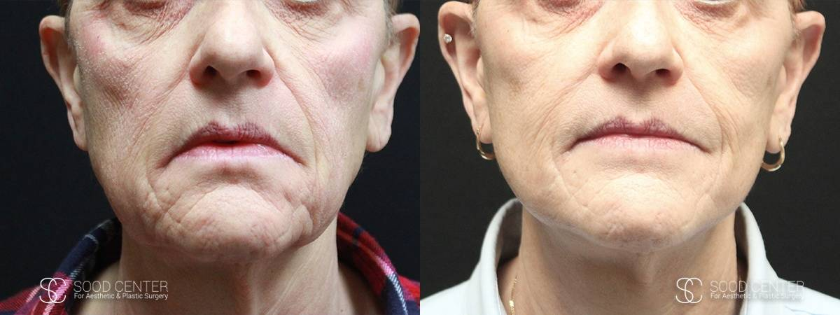 Mini Facelift Before and After Photo - Patient 3A
