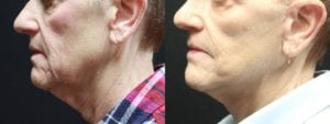 Mini Facelift Before and After Photo - Patient 3C