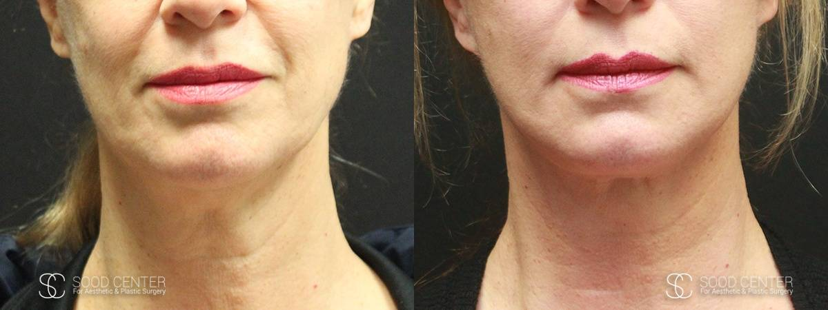 Necklift Before and After Photo - Patient 1A