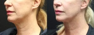 Necklift Before and After Photo - Patient 1B