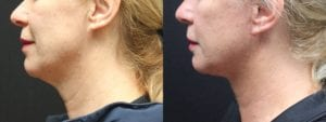 Necklift Before and After Photo - Patient 1C