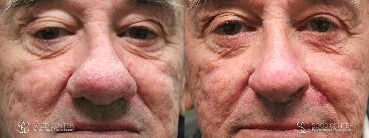 Rhinophyma Treatment Before and After Photo - Patient 1