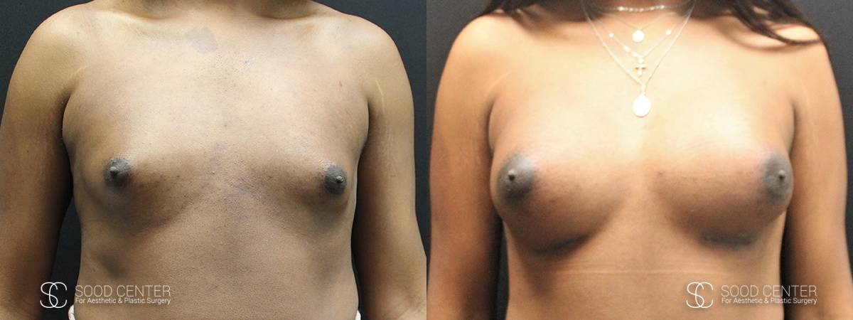 Breast Augmentation for Transgender Woman Before & After Photo - 1A