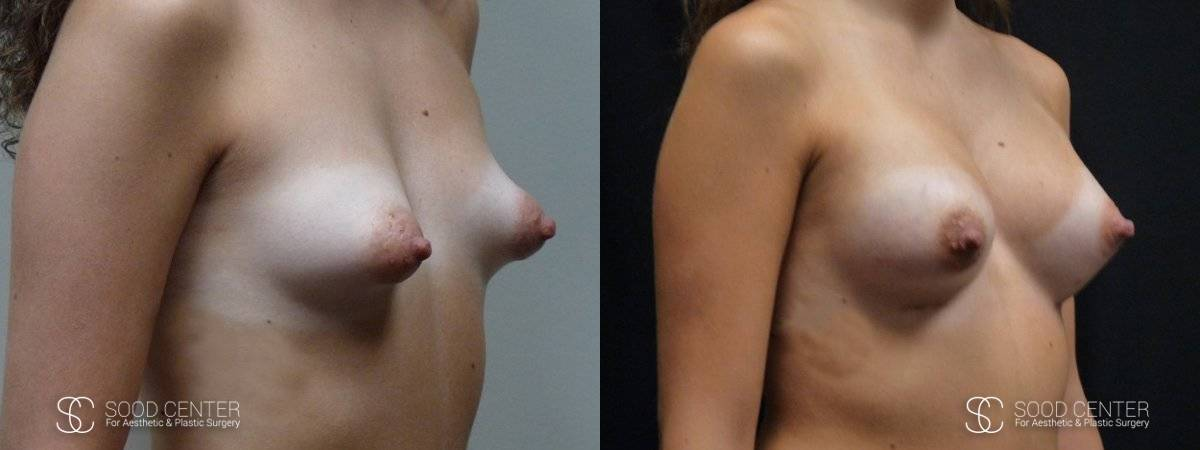 Tuberous Breast Before & After Pictures - Patient 1